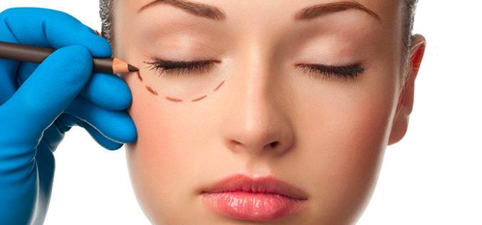 Blefaroplastica e Soft Surgery: Cosa Sapere?