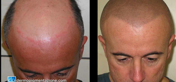 Dermopigmentazione Medicale, Cosa è?