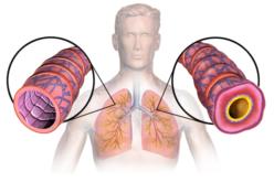 Asma Bronchiale: Cause e Rimedi