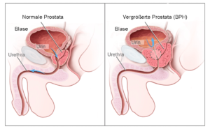 prostata diagnosi