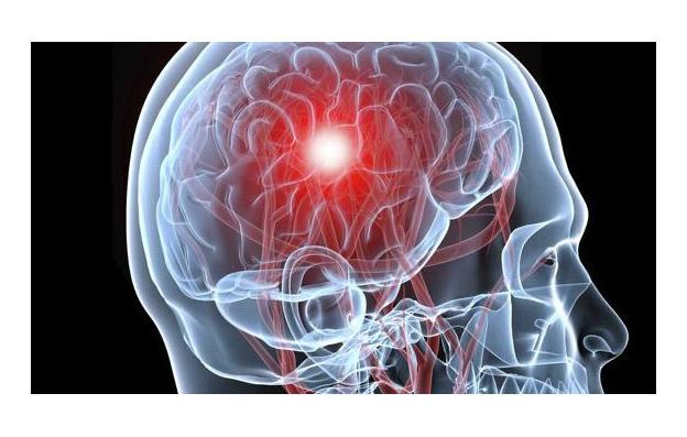 Aneurisma Cerebrale, Quali Sono i Sintomi?