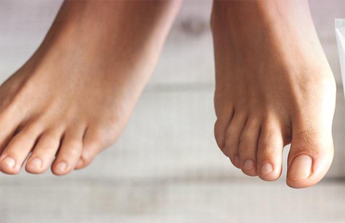 Funghi ai piedi: sintomi e rimedi