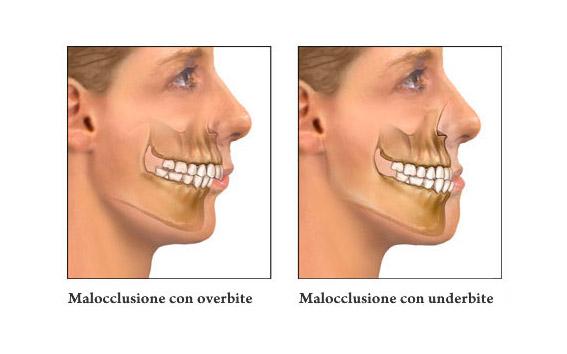 La Malaocclusione (Sindrome Muscolo Tensiva)