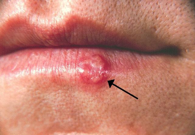 Herpes Labiale Cause e Rimedi